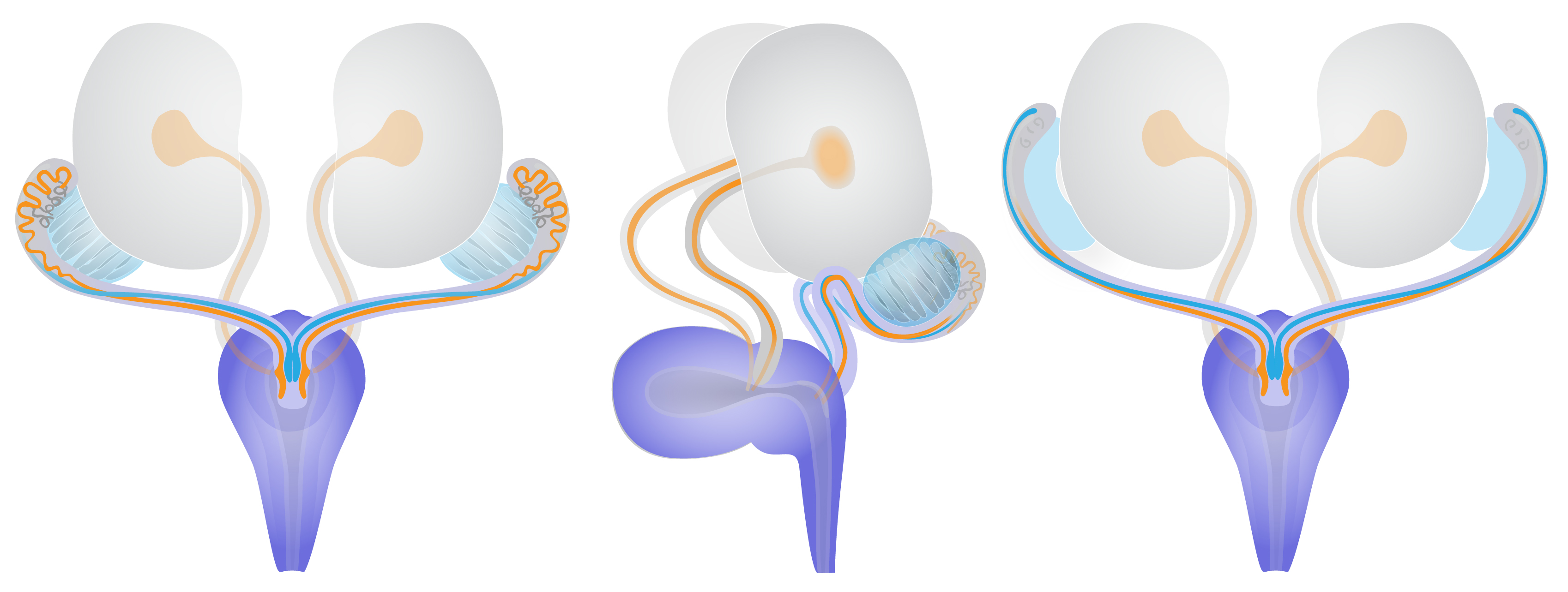 3D schematic views of sex-specific paramesonephric and nephric duct dengeneration